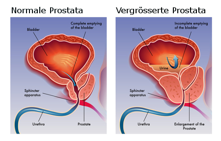 Prostata normal + vergrössert